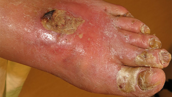 inflammation i sår