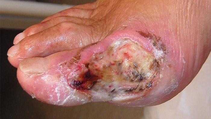 vad är fibrin i sår